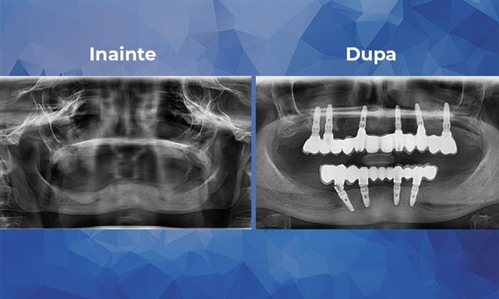 A case of rehabilitation of the upper jaw with six implants and bilateral sinus lift and of the lower jaw with four immediate loading implants
