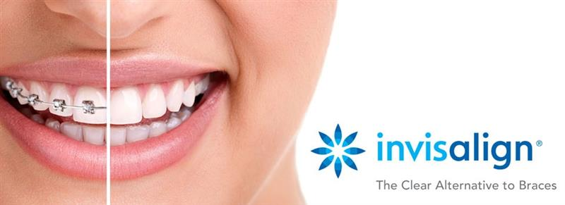 Aparate invizibile Clear Aligner/Invisalign