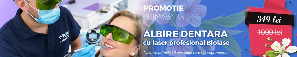 Promotie Primavara Albire dentara U-smile Cluj
